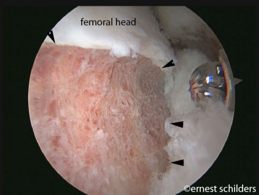 FAI Surgery - femoral neck osteoplasty
