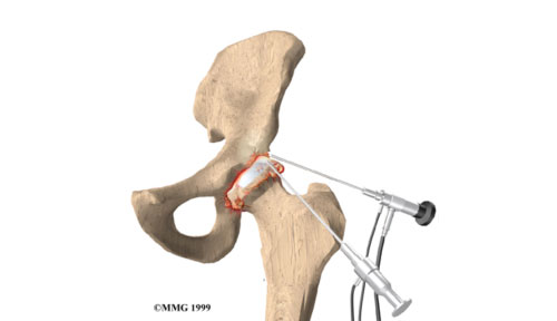 Hip Arthroscopy Procedures - General Principles