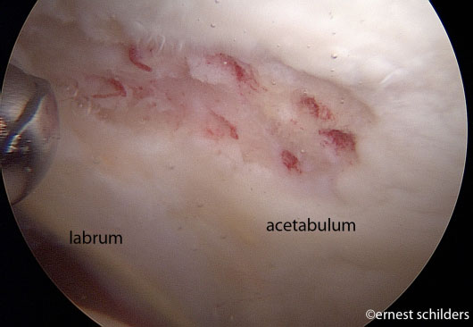 microfracture holes